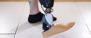 Ossur Sensor Controlled Bionic Foot