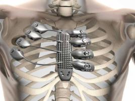 3 D Implantat
