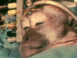 Transplantace Hlavy